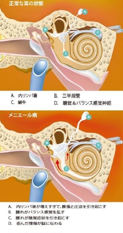 181109meniere's_disease