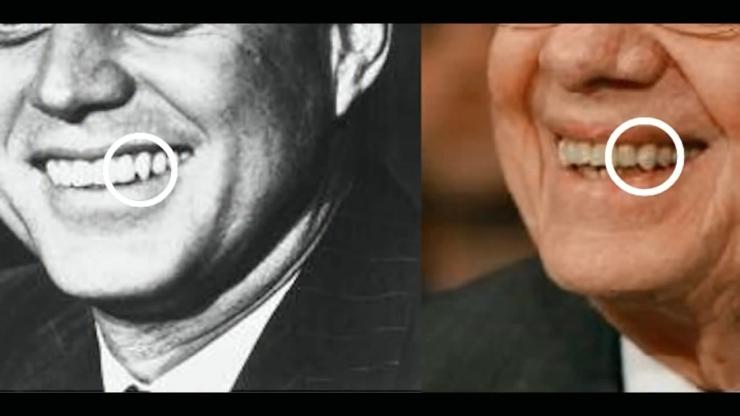 JFK Assassination Exposed Part III Pre Release Notice JFKとJimmyCarter元大統領の歯の比較