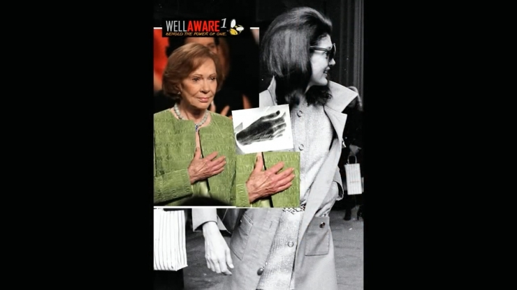 JFK Assassination Exposed Part III Pre Release Notice JFKの妻とジミー・カーター元大統領の妻の静脈認証jpg