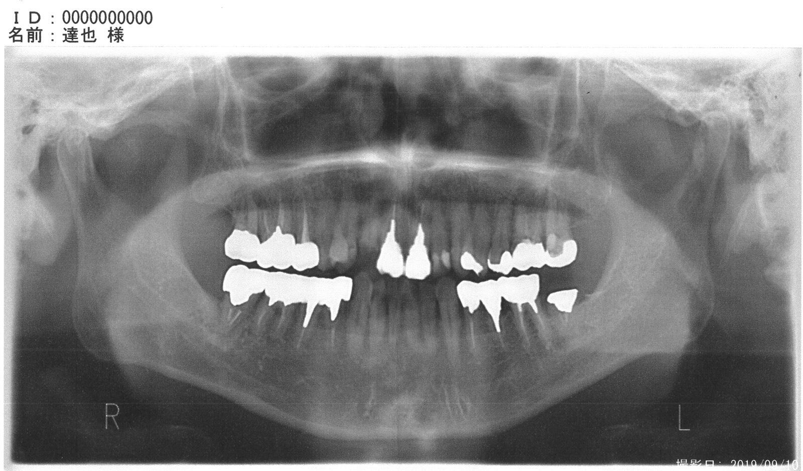 虫歯レントゲン